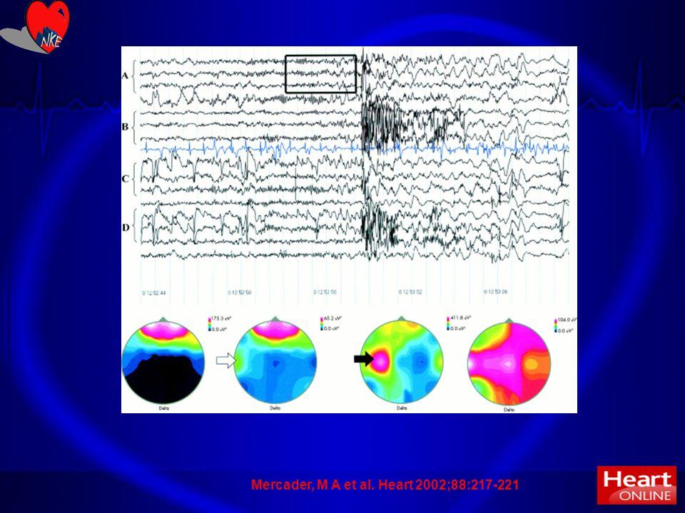 Mercader, M A et al. Heart 2002;88:217-221