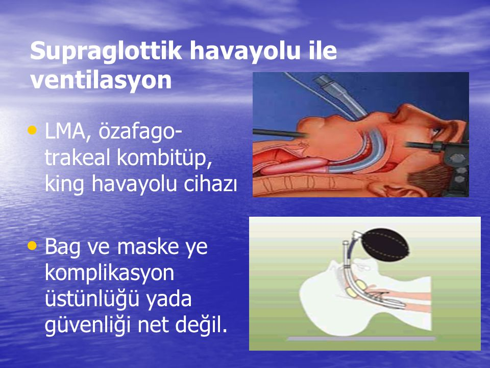 Supraglottik havayolu ile ventilasyon