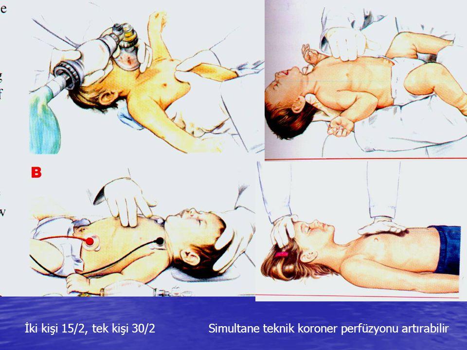 İki kişi 15/2, tek kişi 30/2 Simultane teknik koroner perfüzyonu artırabilir