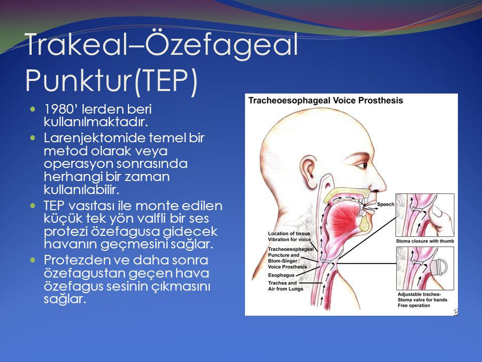 Trakeal–Özefageal Punktur(TEP)