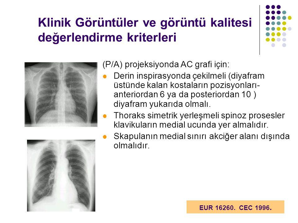 Klinik Görüntüler ve görüntü kalitesi değerlendirme kriterleri