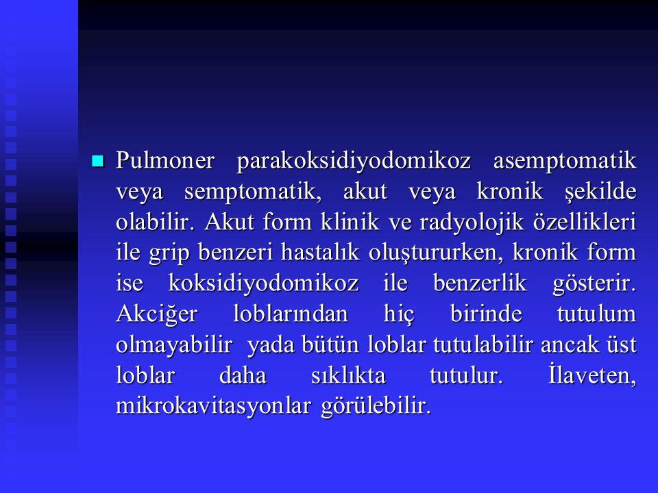 Pulmoner parakoksidiyodomikoz asemptomatik veya semptomatik, akut veya kronik şekilde olabilir.