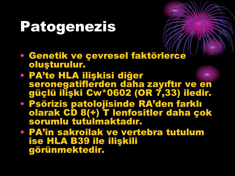 Patogenezis Genetik ve çevresel faktörlerce oluşturulur.