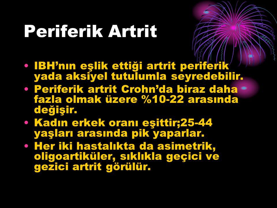 Periferik Artrit IBH'nın eşlik ettiği artrit periferik yada aksiyel tutulumla seyredebilir.