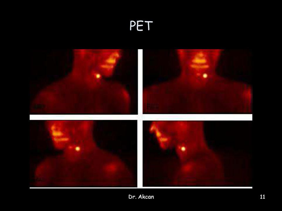 PET Dr. Akcan