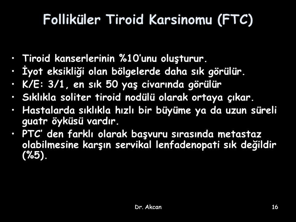 Folliküler Tiroid Karsinomu (FTC)