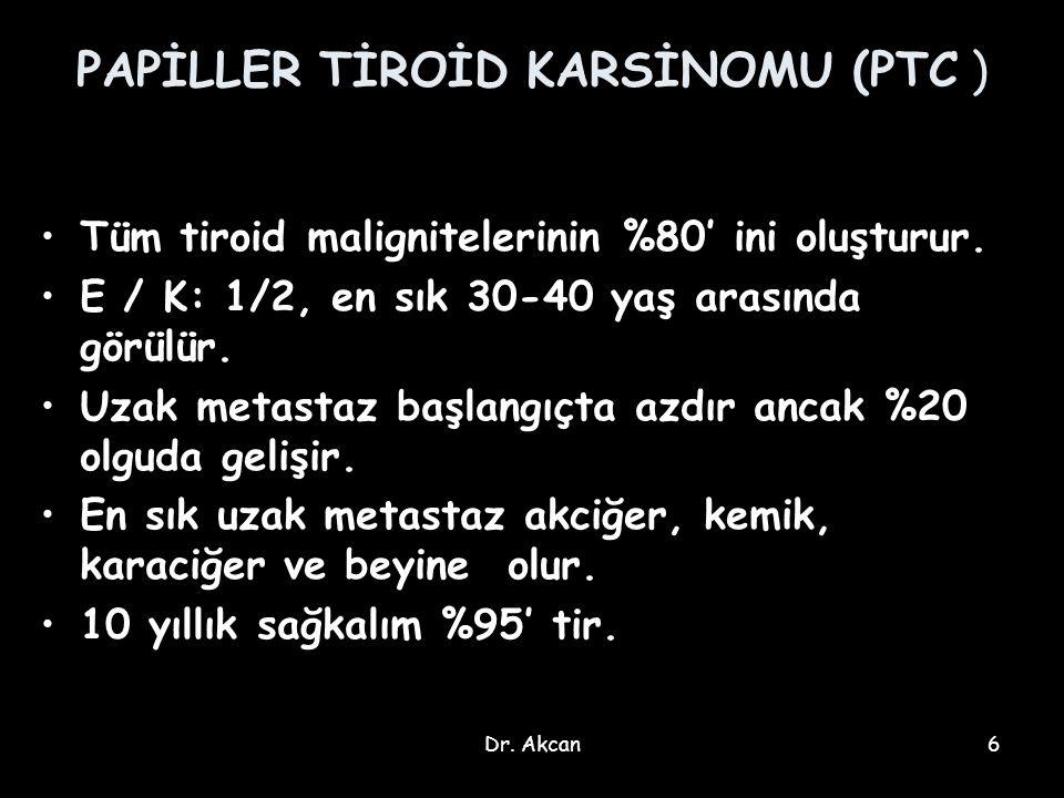 PAPİLLER TİROİD KARSİNOMU (PTC )