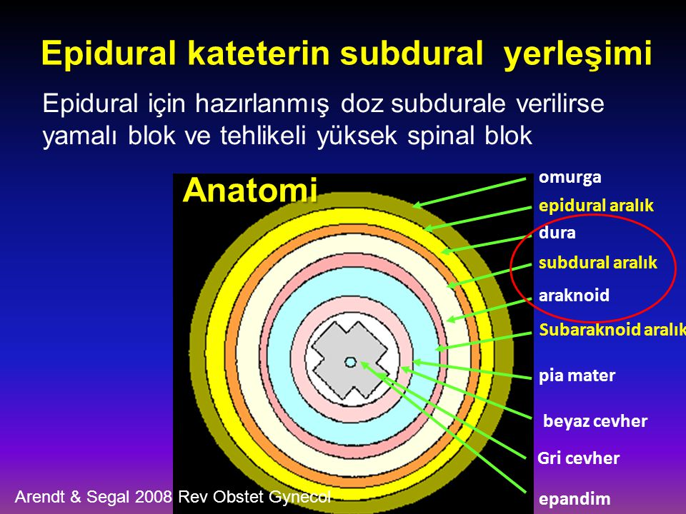 Epidural kateterin subdural yerleşimi