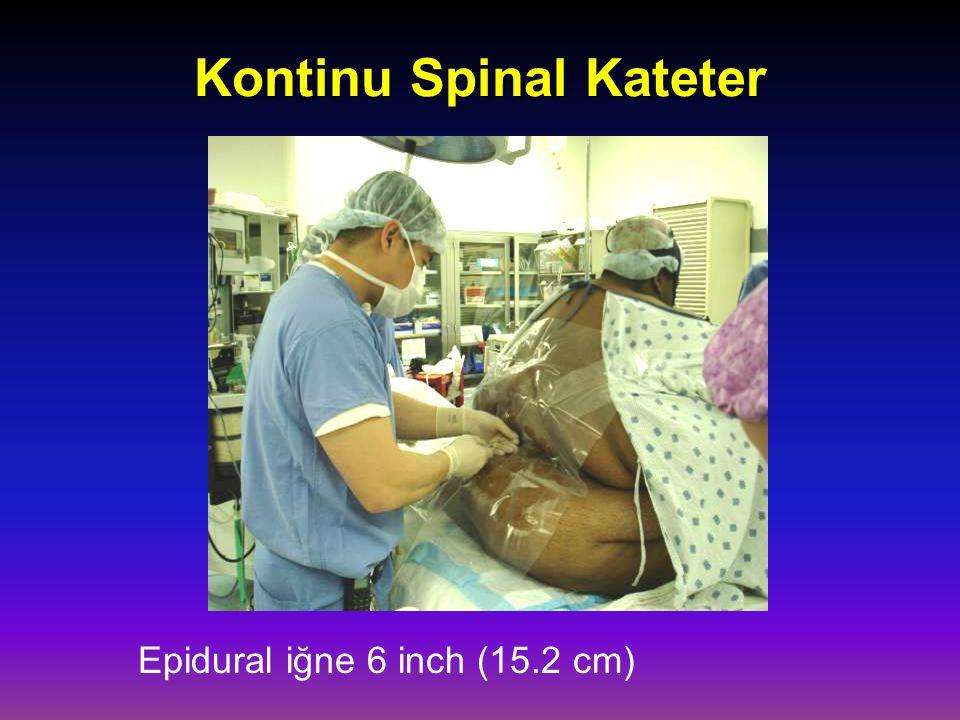 Kontinu Spinal Kateter