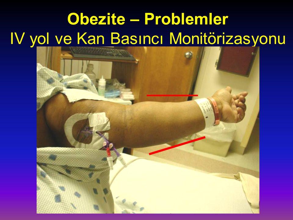 Obezite – Problemler IV yol ve Kan Basıncı Monitörizasyonu