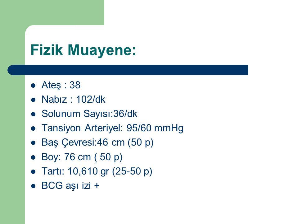 Fizik Muayene: Ateş : 38 Nabız : 102/dk Solunum Sayısı:36/dk