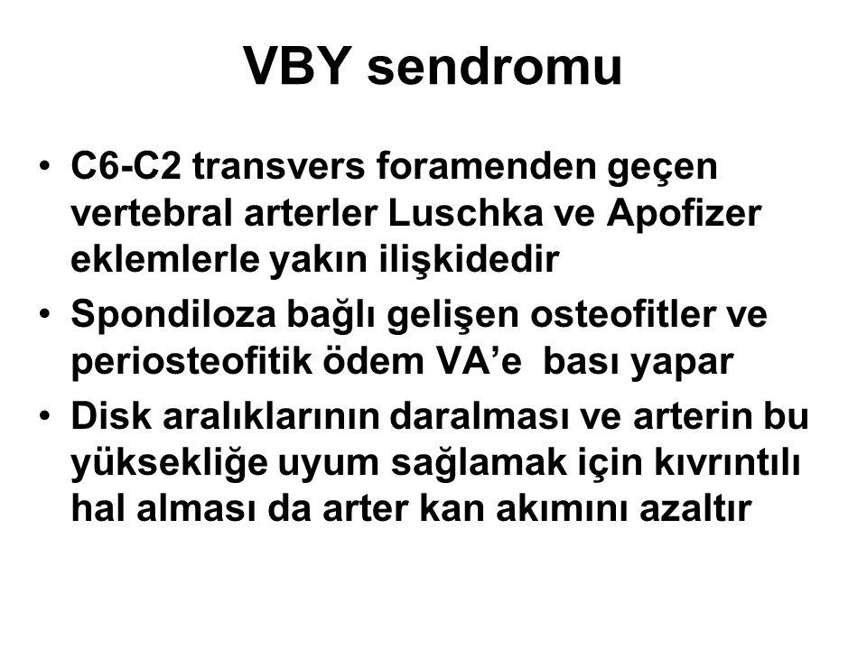 VBY sendromu C6-C2 transvers foramenden geçen vertebral arterler Luschka ve Apofizer eklemlerle yakın ilişkidedir.