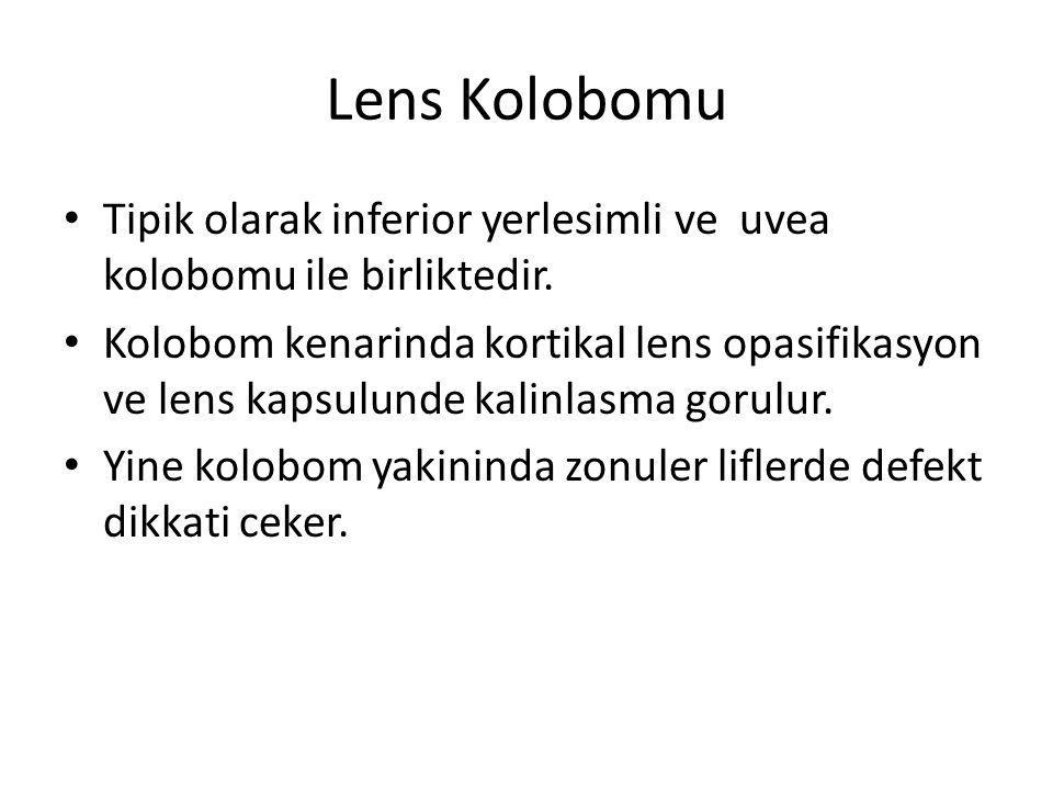 Lens Kolobomu Tipik olarak inferior yerlesimli ve uvea kolobomu ile birliktedir.