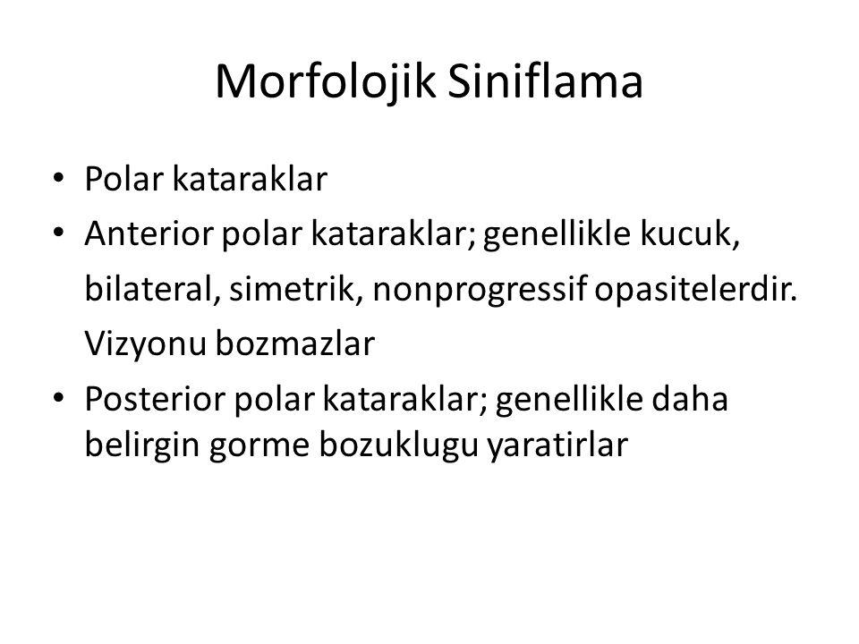 Morfolojik Siniflama Polar kataraklar