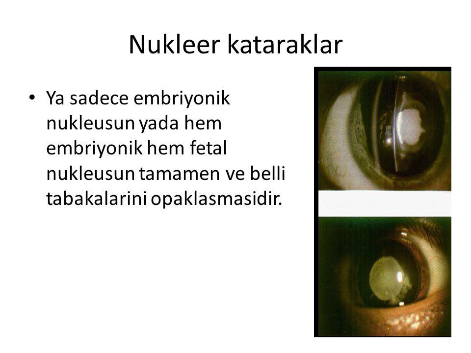 Nukleer kataraklar Ya sadece embriyonik nukleusun yada hem embriyonik hem fetal nukleusun tamamen ve belli tabakalarini opaklasmasidir.