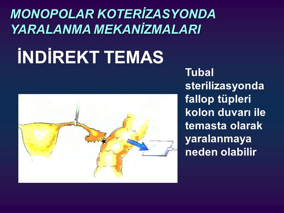 İNDİREKT TEMAS MONOPOLAR KOTERİZASYONDA YARALANMA MEKANİZMALARI