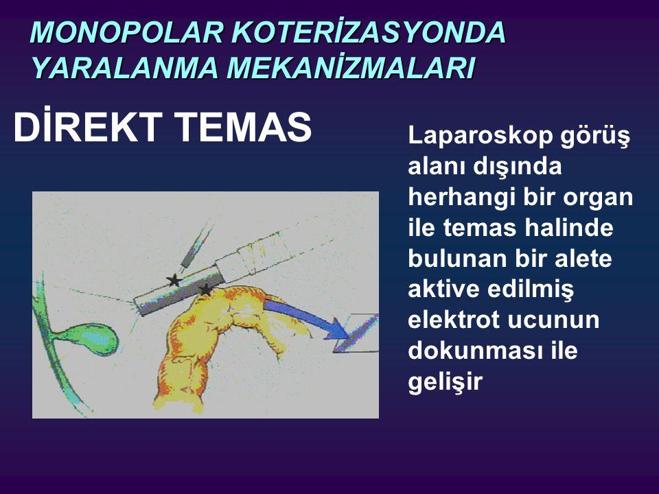 MONOPOLAR KOTERİZASYONDA YARALANMA MEKANİZMALARI