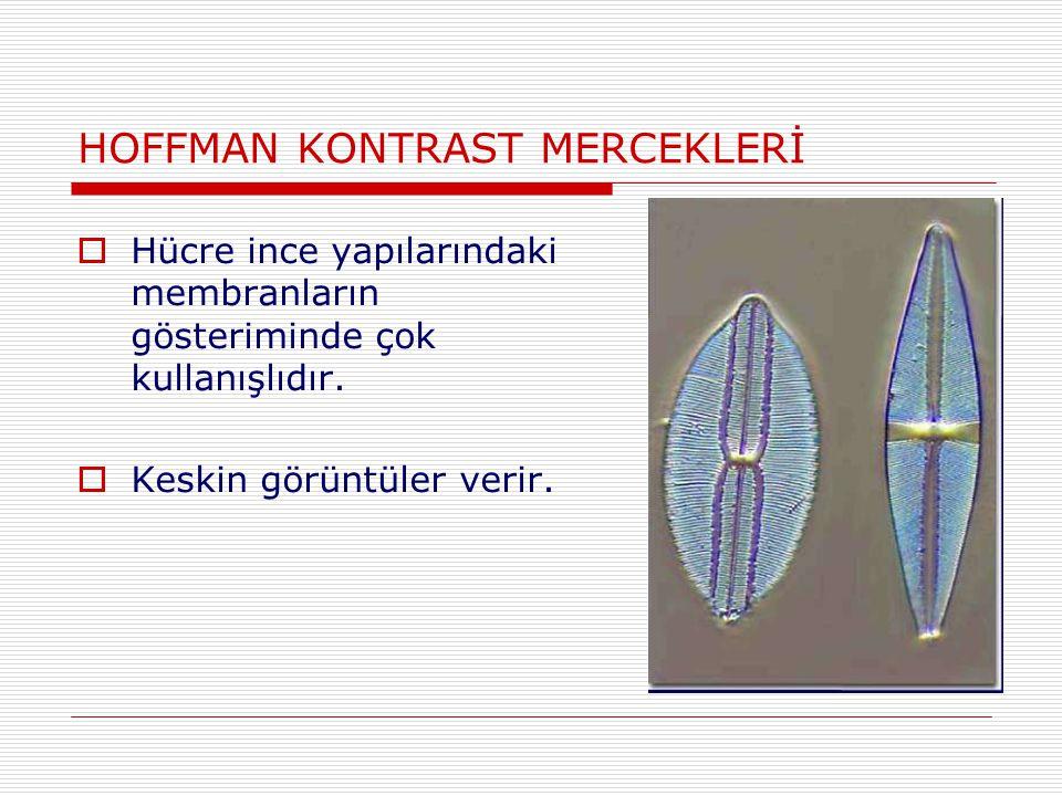 HOFFMAN KONTRAST MERCEKLERİ