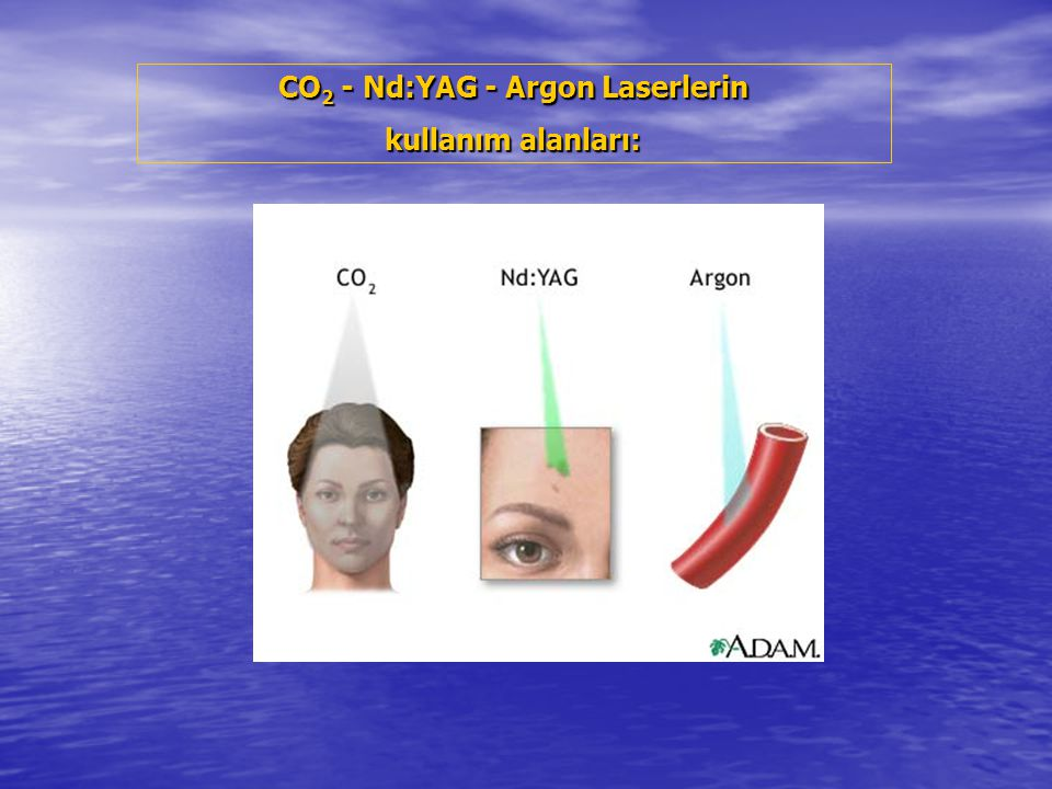 CO2 - Nd:YAG - Argon Laserlerin