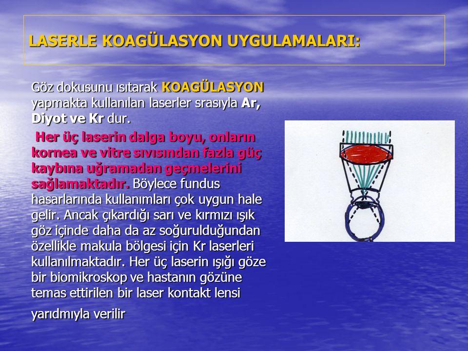 LASERLE KOAGÜLASYON UYGULAMALARI: