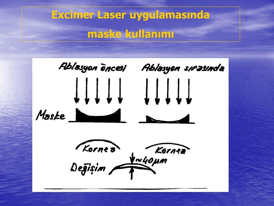 Excimer Laser uygulamasında