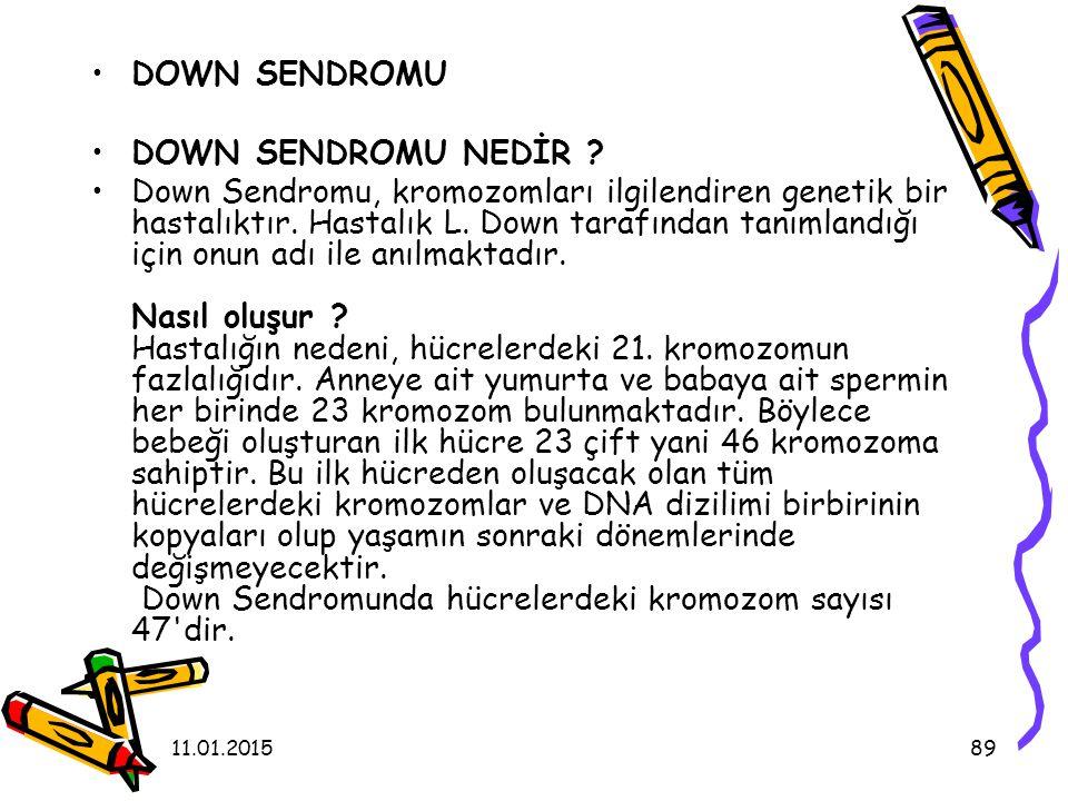 DOWN SENDROMU DOWN SENDROMU NEDİR