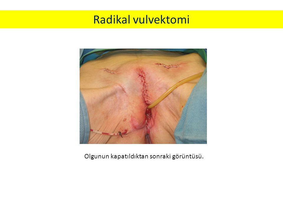 Radikal vulvektomi Olgunun kapatıldıktan sonraki görüntüsü.