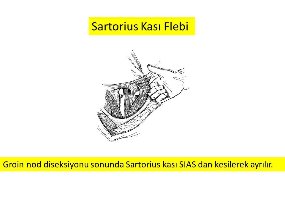 Sartorius Kası Flebi Groin nod diseksiyonu sonunda Sartorius kası SIAS dan kesilerek ayrılır.