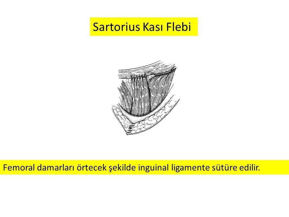 Sartorius Kası Flebi Femoral damarları örtecek şekilde inguinal ligamente sütüre edilir.