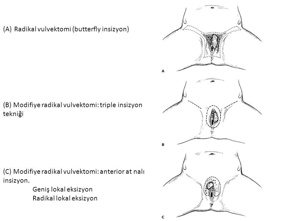 Radikal vulvektomi (butterfly insizyon)