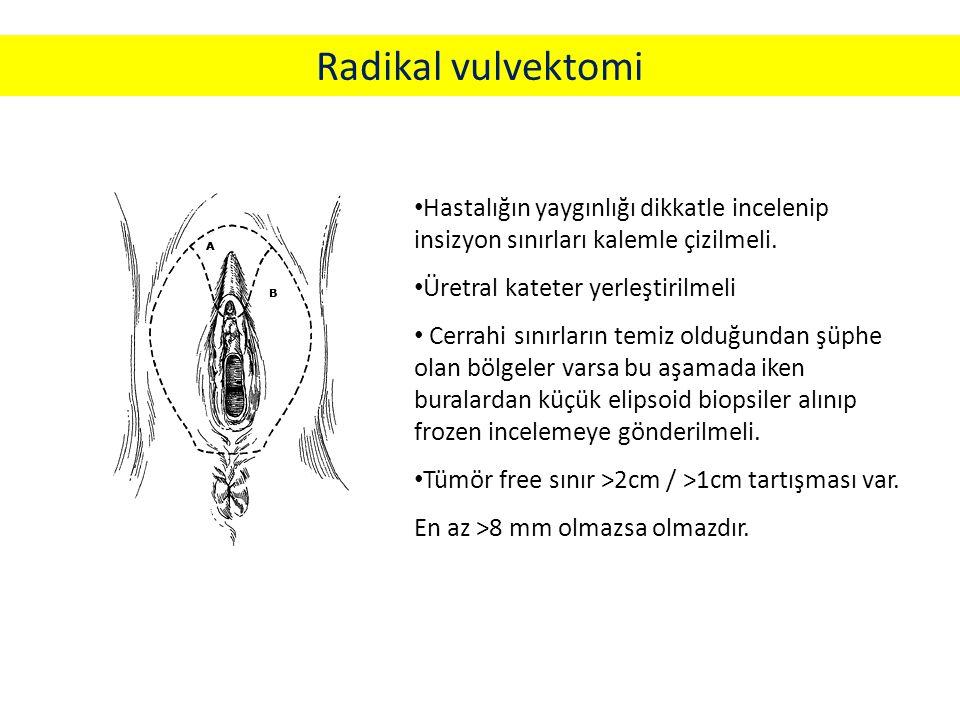Radikal vulvektomi Hastalığın yaygınlığı dikkatle incelenip insizyon sınırları kalemle çizilmeli.