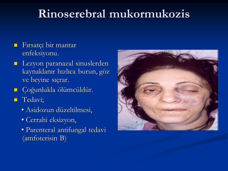 Rinoserebral mukormukozis
