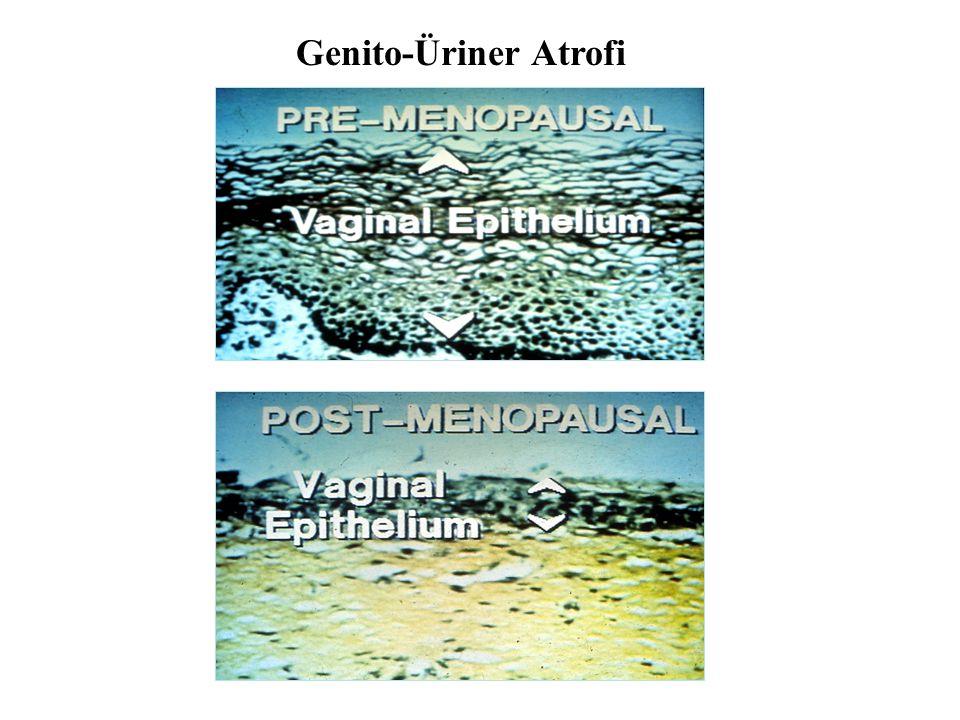 Genito-Üriner Atrofi