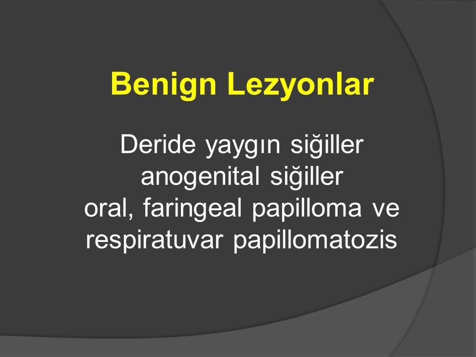 Benign Lezyonlar Deride yaygın siğiller anogenital siğiller