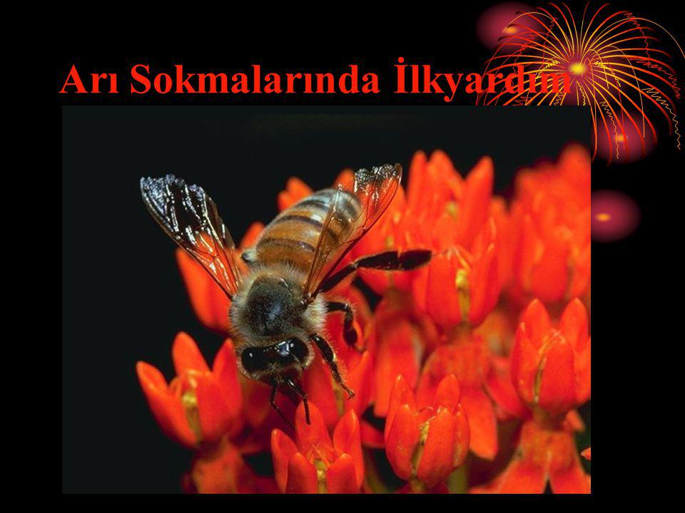 Arı Sokmalarında İlkyardım