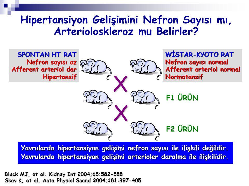 Hipertansiyon Gelişimini Nefron Sayısı mı, Arterioloskleroz mu Belirler