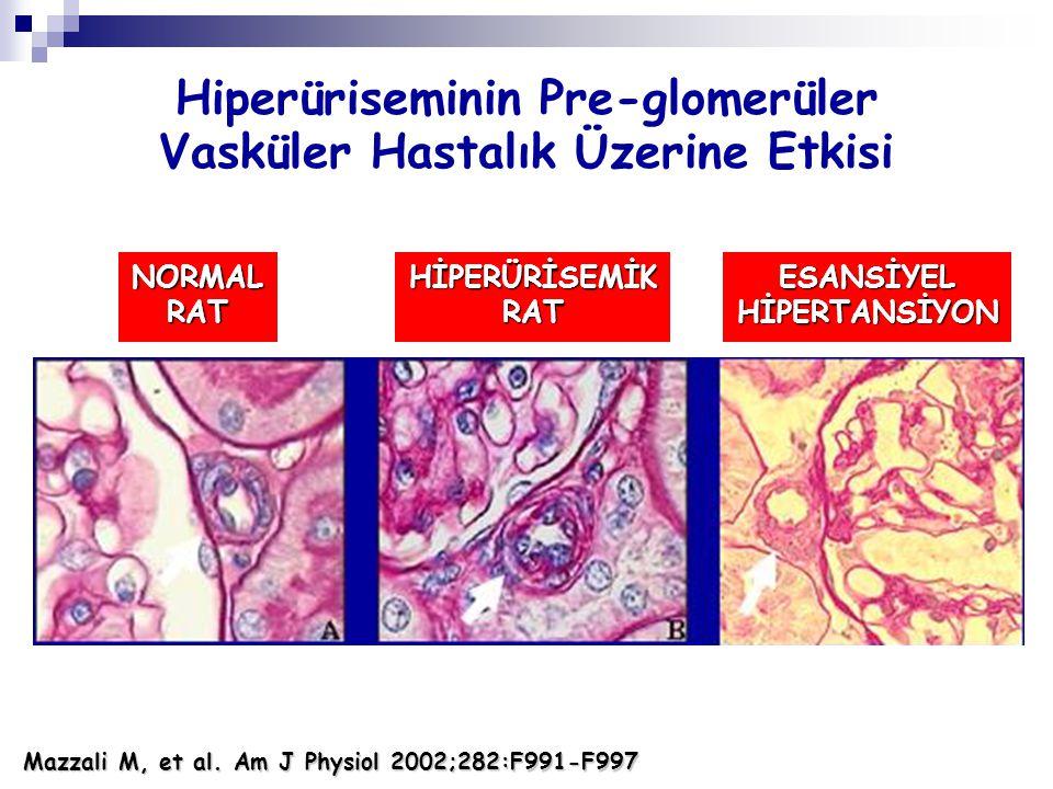 Hiperüriseminin Pre-glomerüler Vasküler Hastalık Üzerine Etkisi