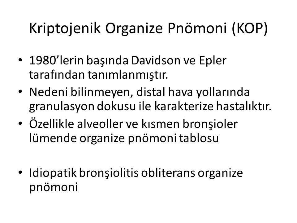 Kriptojenik Organize Pnömoni (KOP)
