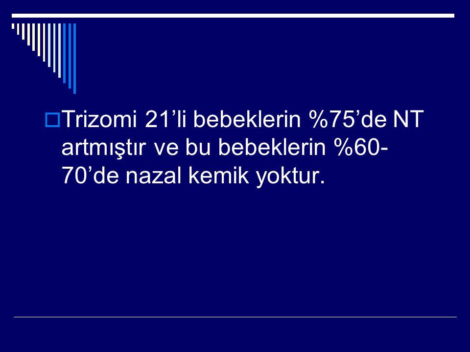 Trizomi 21'li bebeklerin %75'de NT artmıştır ve bu bebeklerin %60-70'de nazal kemik yoktur.