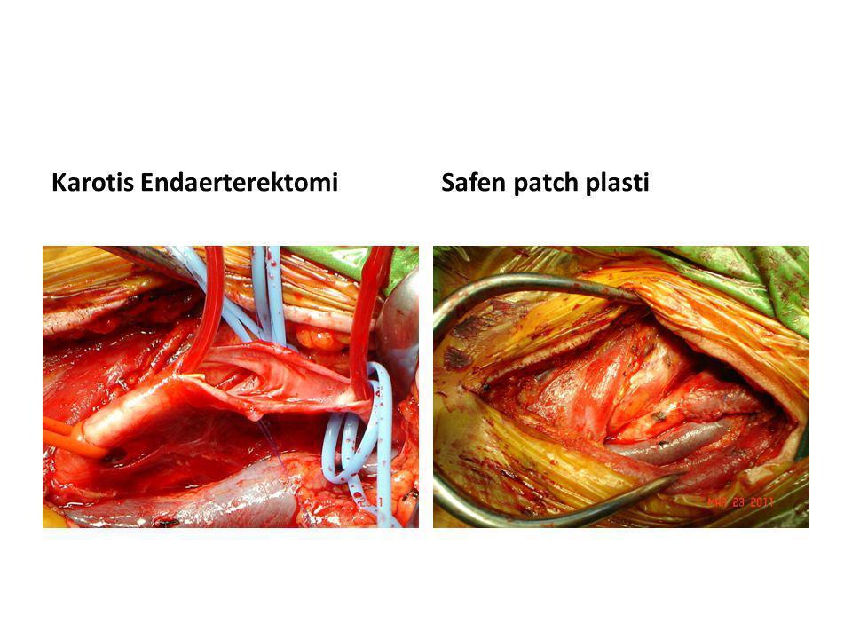 Karotis Endaerterektomi