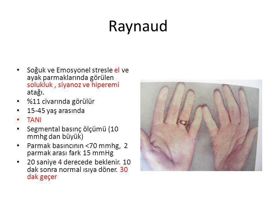 Raynaud Soğuk ve Emosyonel stresle el ve ayak parmaklarında görülen solukluk , siyanoz ve hiperemi atağı.