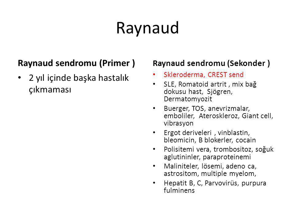 Raynaud Raynaud sendromu (Primer )