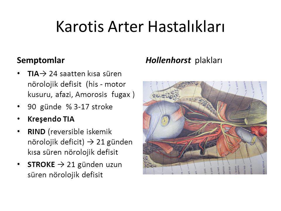 Karotis Arter Hastalıkları