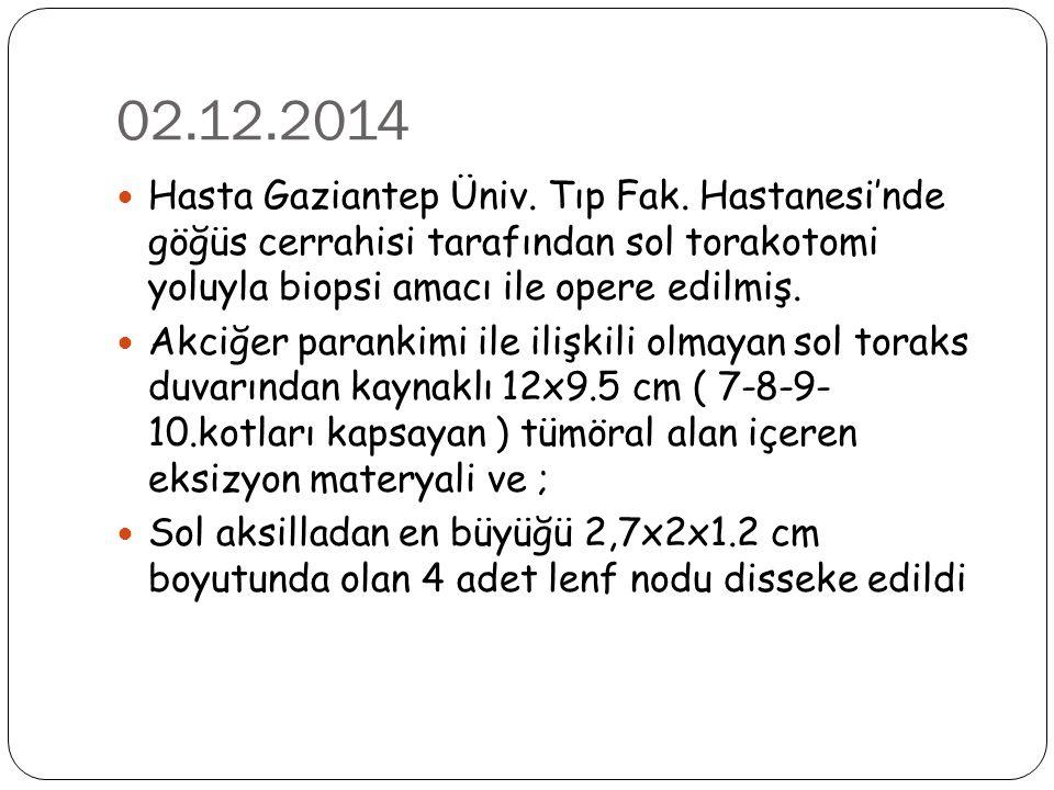 02.12.2014 Hasta Gaziantep Üniv. Tıp Fak. Hastanesi'nde göğüs cerrahisi tarafından sol torakotomi yoluyla biopsi amacı ile opere edilmiş.