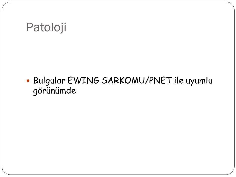 Patoloji Bulgular EWING SARKOMU/PNET ile uyumlu görünümde