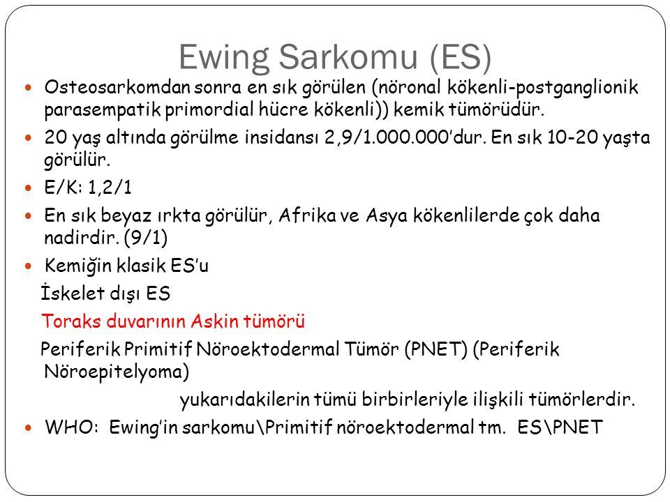 Ewing Sarkomu (ES) Osteosarkomdan sonra en sık görülen (nöronal kökenli-postganglionik parasempatik primordial hücre kökenli)) kemik tümörüdür.
