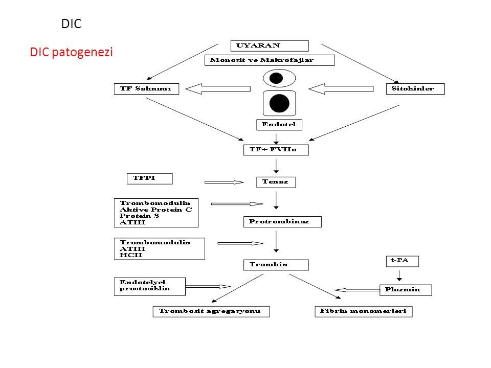 DIC DIC patogenezi