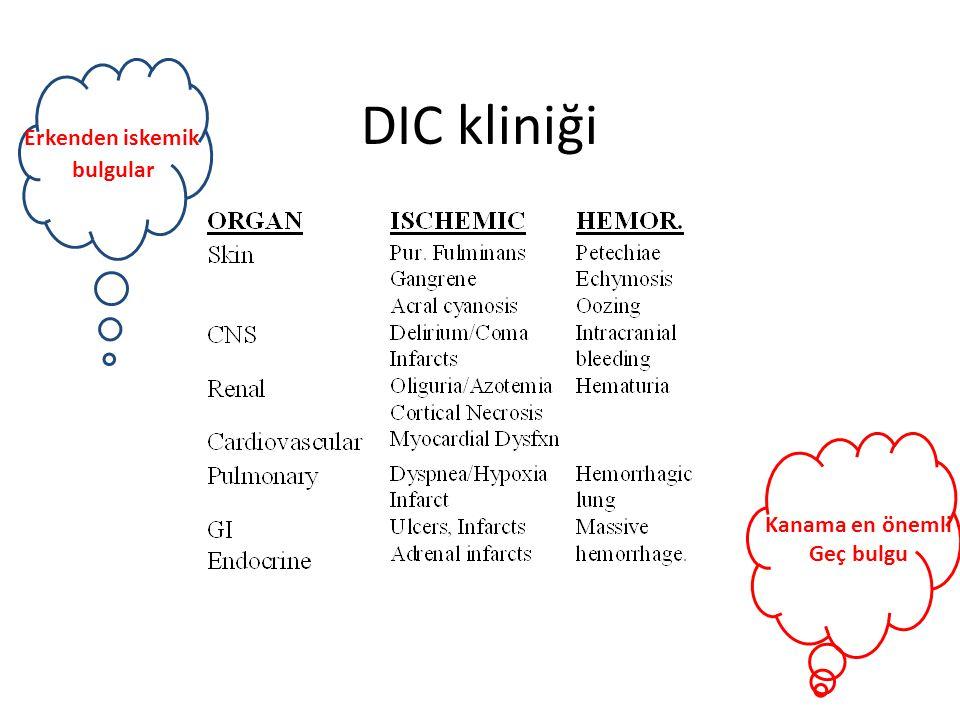 Erkenden iskemik bulgular DIC kliniği Kanama en önemli Geç bulgu