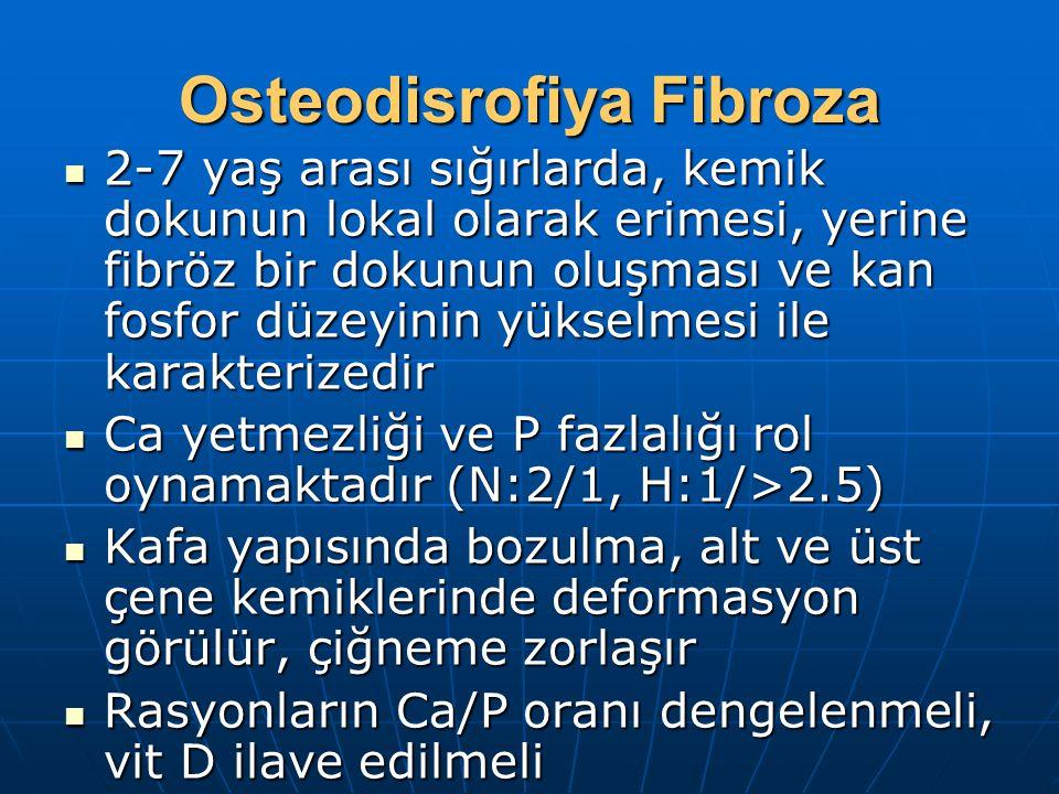 Osteodisrofiya Fibroza
