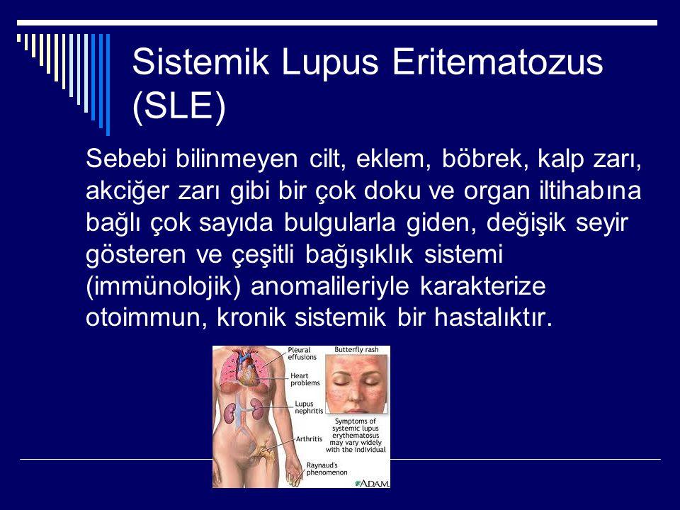 Sistemik Lupus Eritematozus (SLE)
